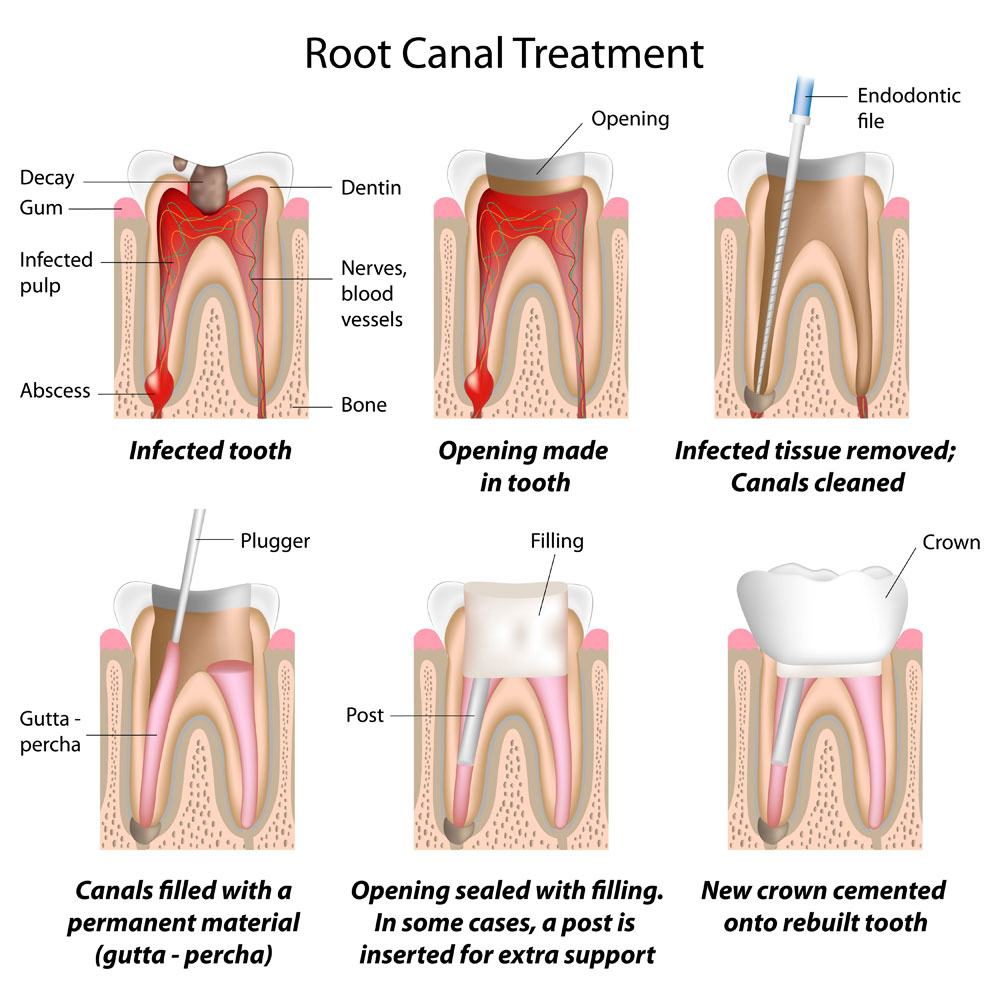 root-canal-treatments